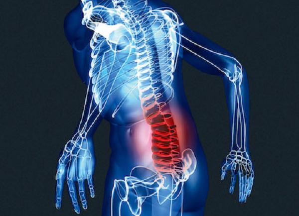 Чем лечить остеохондроз поясничного крестцового отдела позвоночника